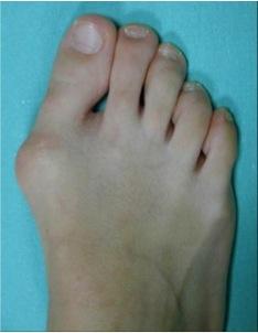 pied deformation os