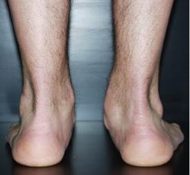 Questce quun pied bot   soigner un pied bot